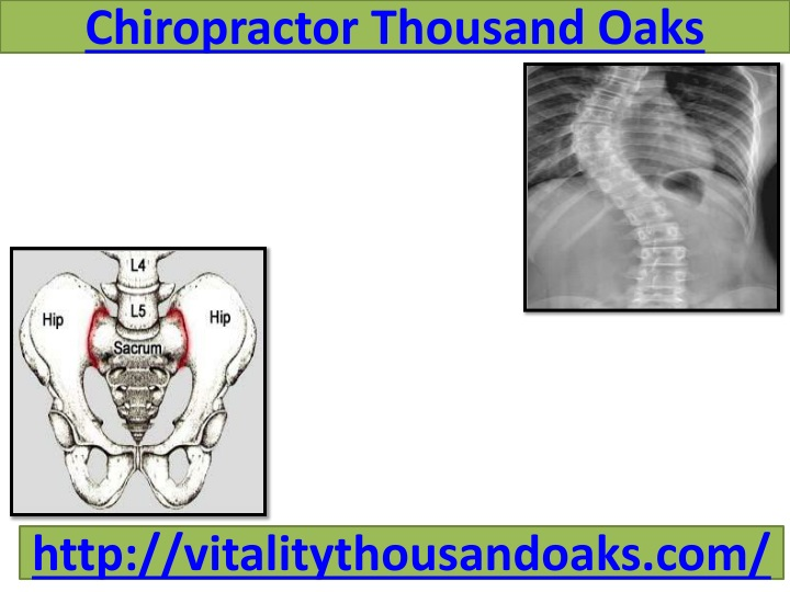 Chiropractor thousand oaks