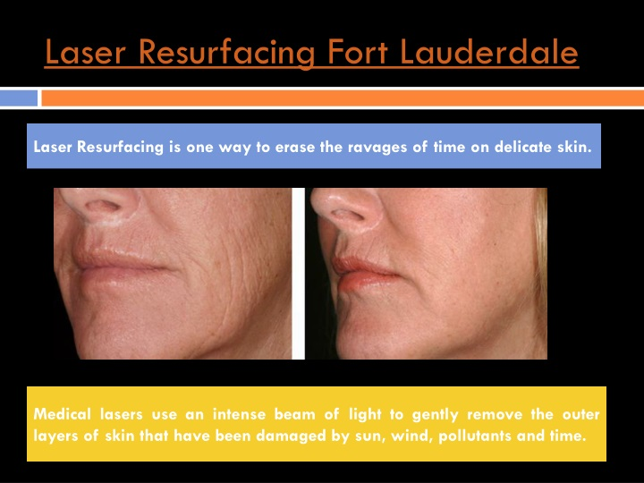Laser resurfacing fort lauderdale