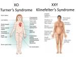 xo turner s syndrome