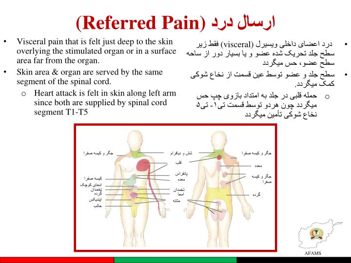(Referred Pain)