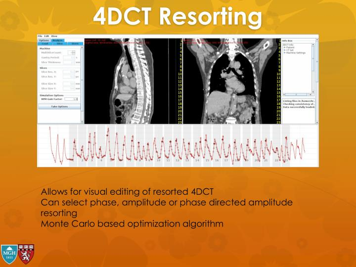 4DCT Resorting
