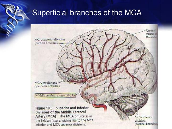 Superficial branches of the MCA