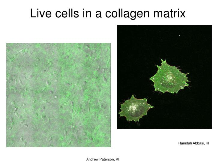 Live cells in a collagen matrix