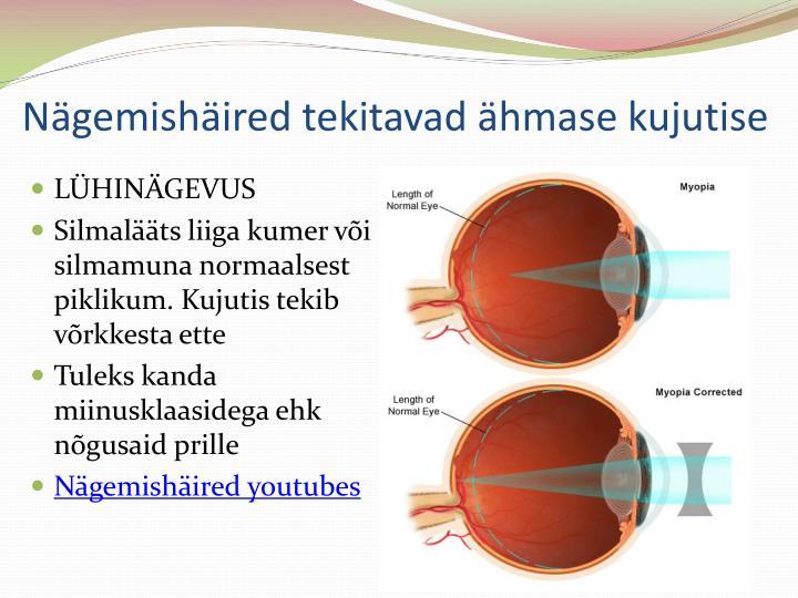 Nägemishäired tekitavad ähmase kujutise