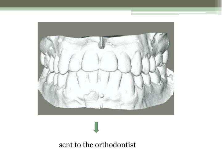 sent to the orthodontist