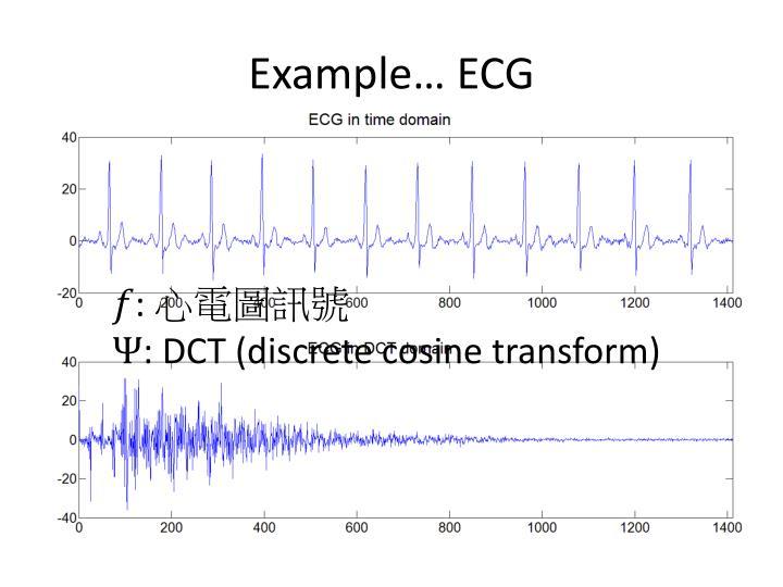 Example… ECG