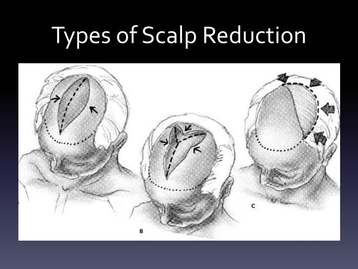 Types of Scalp Reduction
