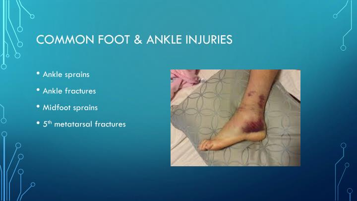 Common Foot & Ankle Injuries