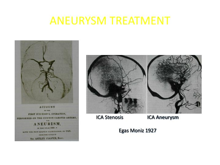 ANEURYSM TREATMENT