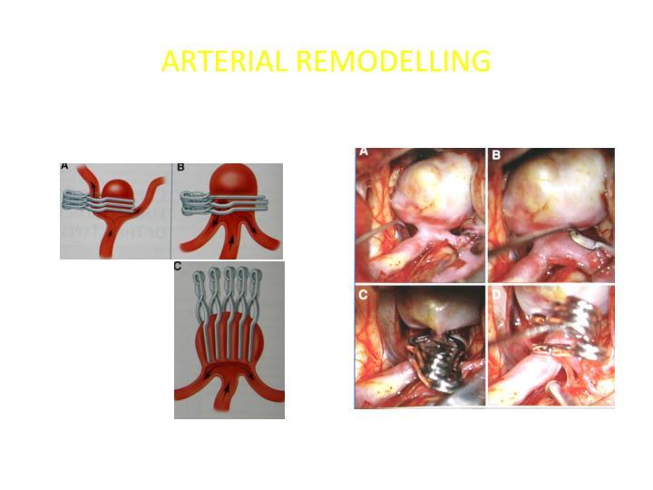 ARTERIAL REMODELLING
