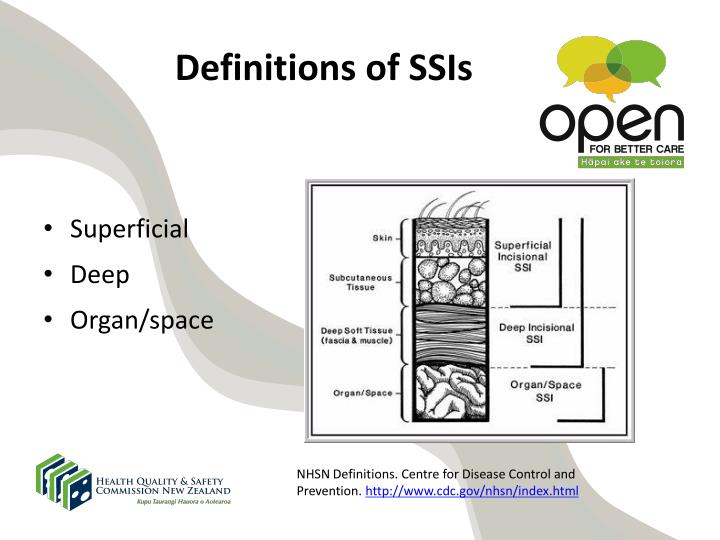 Definitions of SSIs