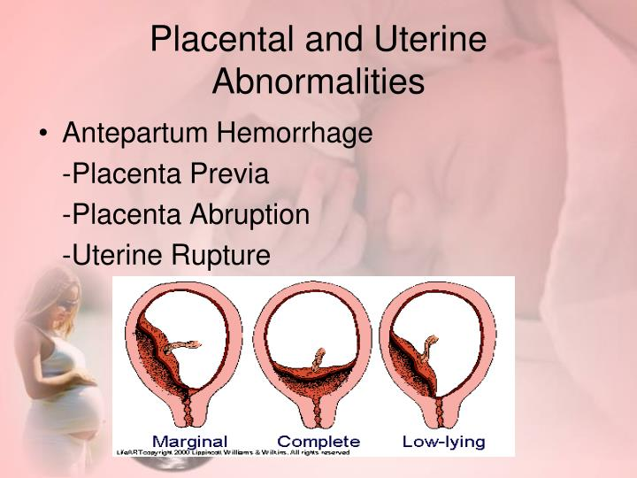 Placental and Uterine Abnormalities
