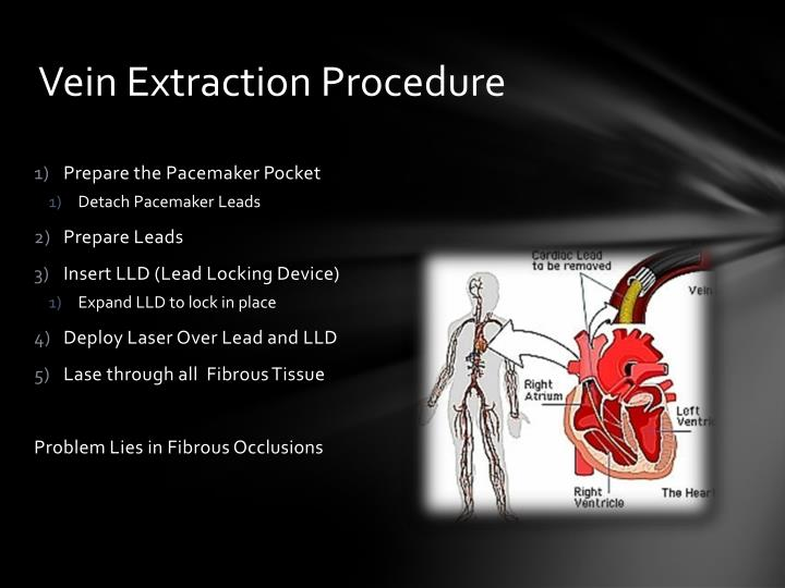 Vein extraction procedure