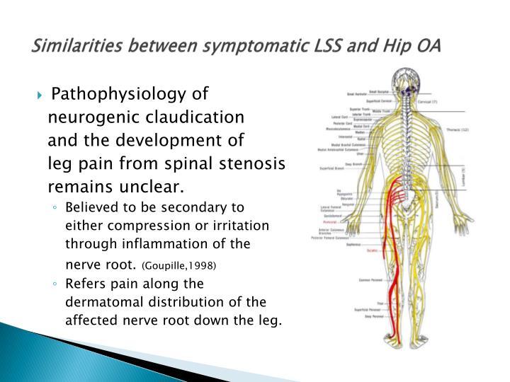 Similarities between symptomatic LSS and Hip OA