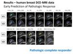 results human breast dce mri data early prediction of pathologic response3