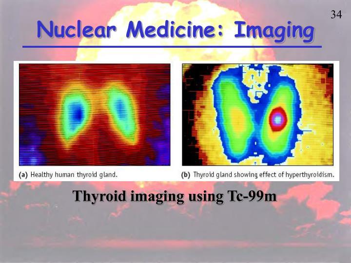 Nuclear Medicine: Imaging