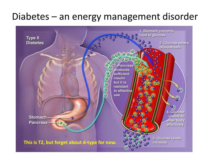 Diabetes – an energy management disorder
