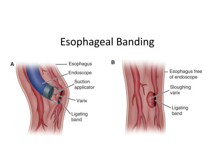 Esophageal Banding