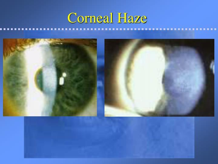 Corneal Haze