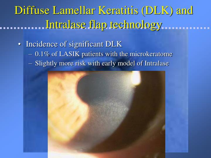 Diffuse Lamellar Keratitis (DLK) and Intralase flap technology