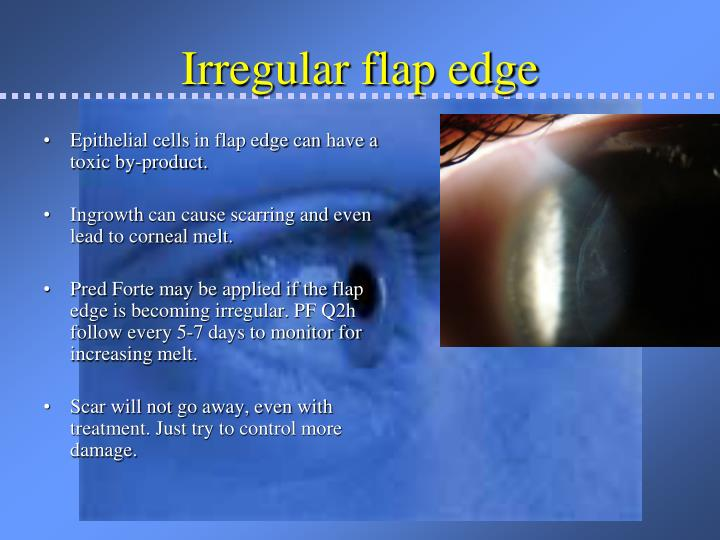 Irregular flap edge