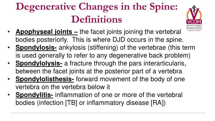 a stiffening of the vertebral joints