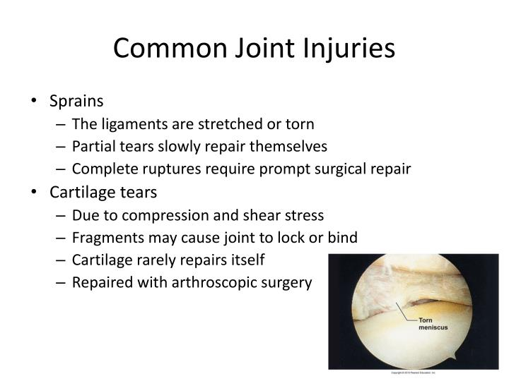 Common Joint Injuries