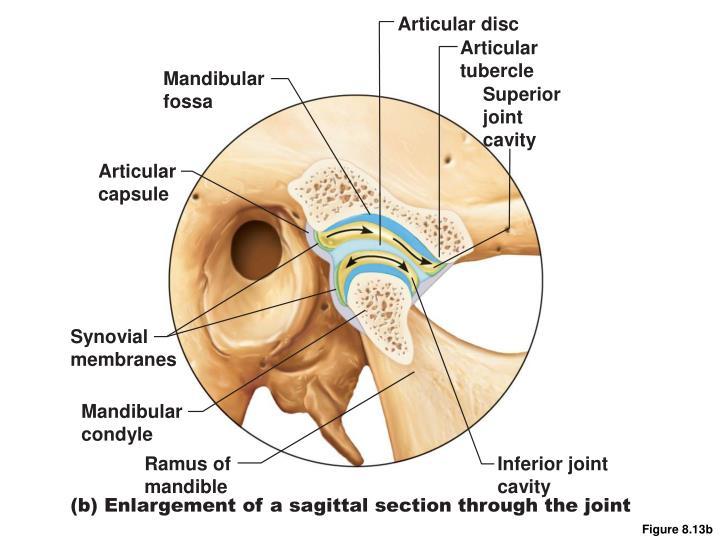 Articular disc