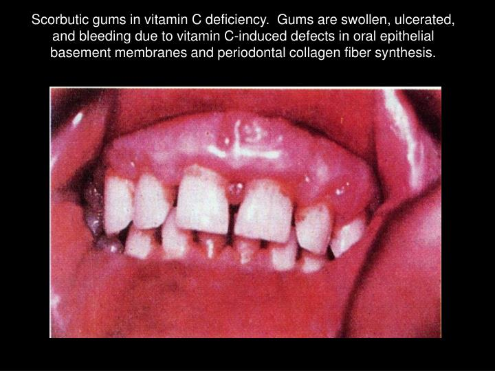 Scorbutic gums in vitamin C deficiency.  Gums are swollen, ulcerated, and bleeding due to vitamin C-induced defects in oral epithelial basement membranes and periodontal collagen fiber synthesis.