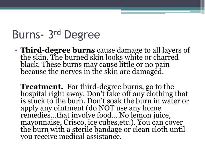 Burns- 3