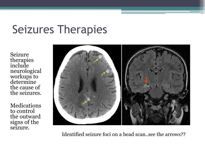 Seizures Therapies