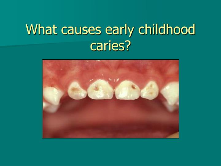What causes early childhood caries?