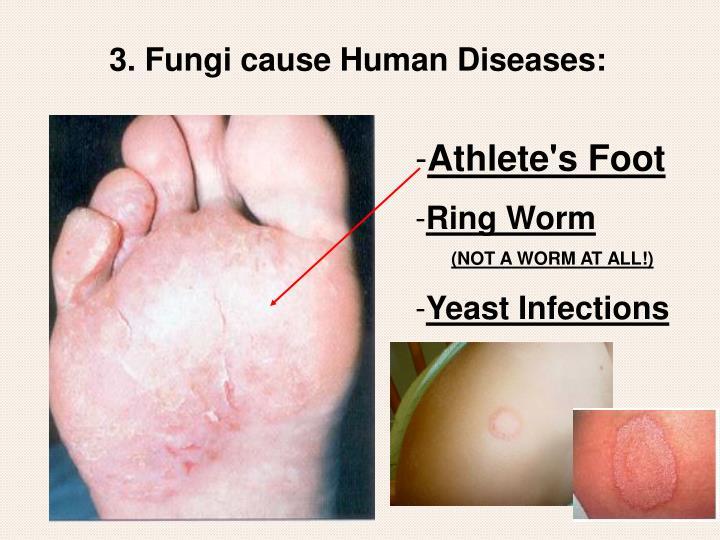 3. Fungi cause Human Diseases: