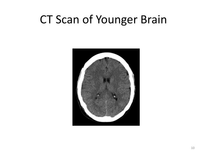 CT Scan of Younger Brain