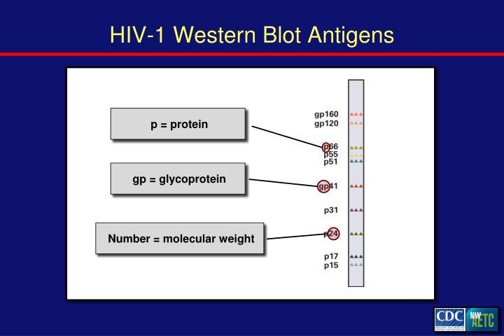 HIV-1 Western Blot Antigens