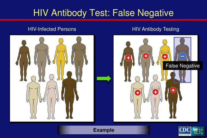 HIV Antibody Test: False Negative