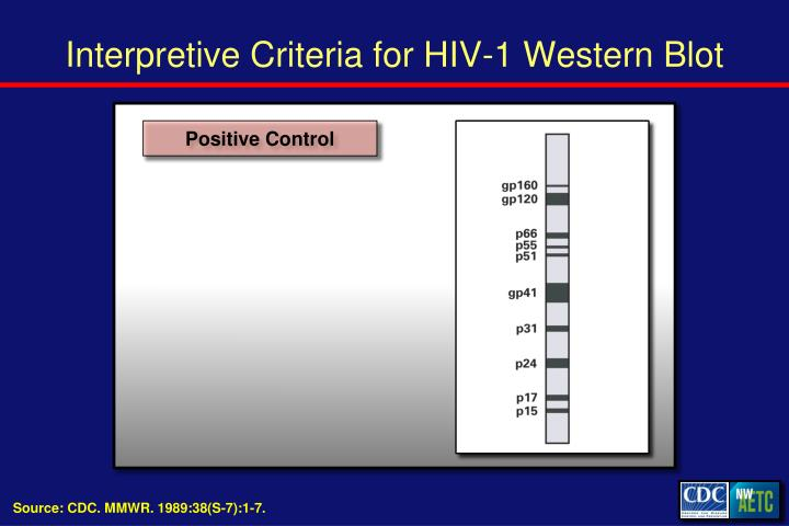 Interpretive Criteria for HIV-1 Western Blot