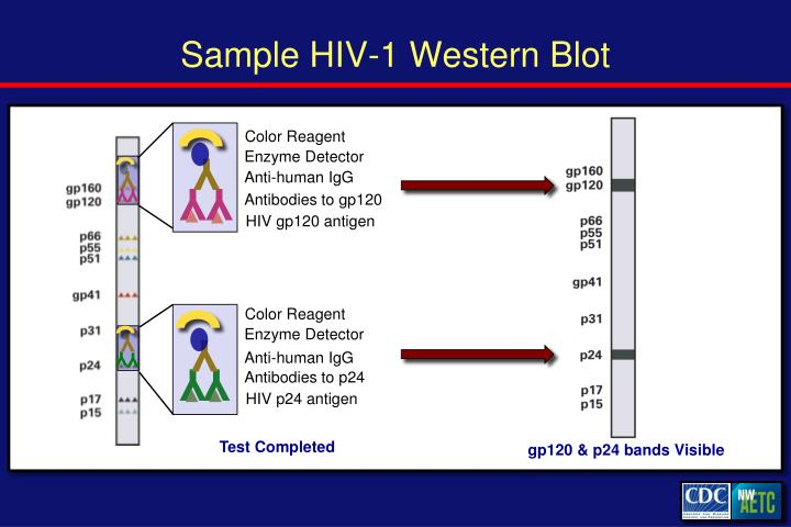 Sample HIV-1 Western Blot