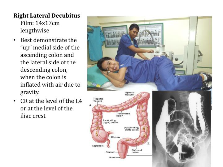 Right Lateral Decubitus