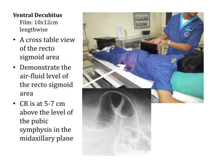 Ventral Decubitus