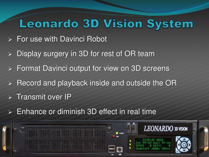 Leonardo 3D Vision System