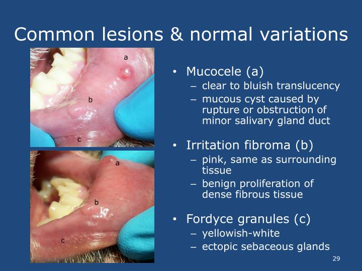 Common lesions & normal variations