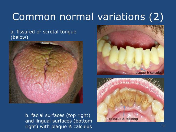 Common normal variations (2)