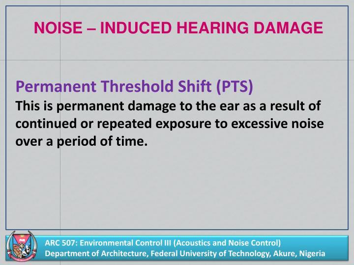 NOISE – INDUCED HEARING DAMAGE