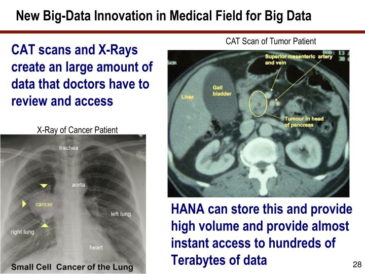 New Big-Data Innovation in Medical Field for Big Data