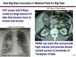 new big data innovation in medical field for big data