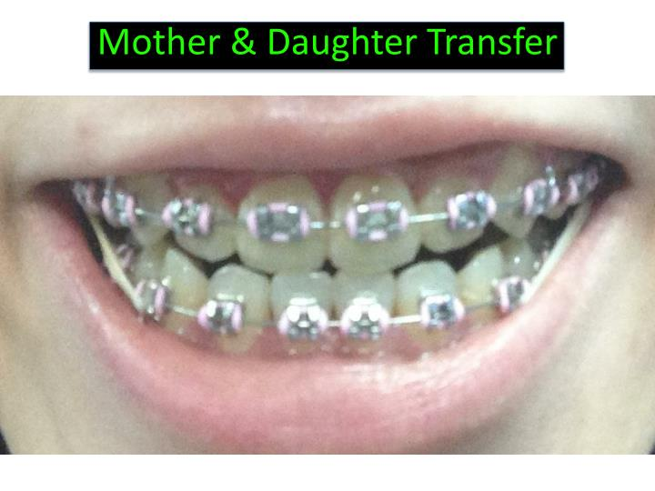 Mother & Daughter Transfer