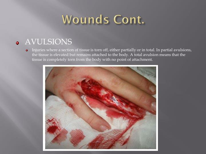 Wounds Cont.