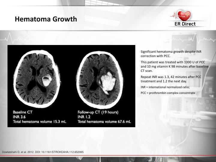 Hematoma Growth