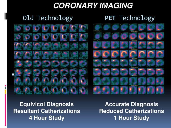 CORONARY IMAGING